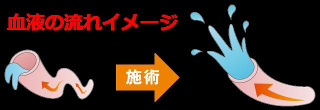 血液の流れイメージ